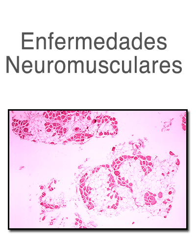 neuromuscularv2.png